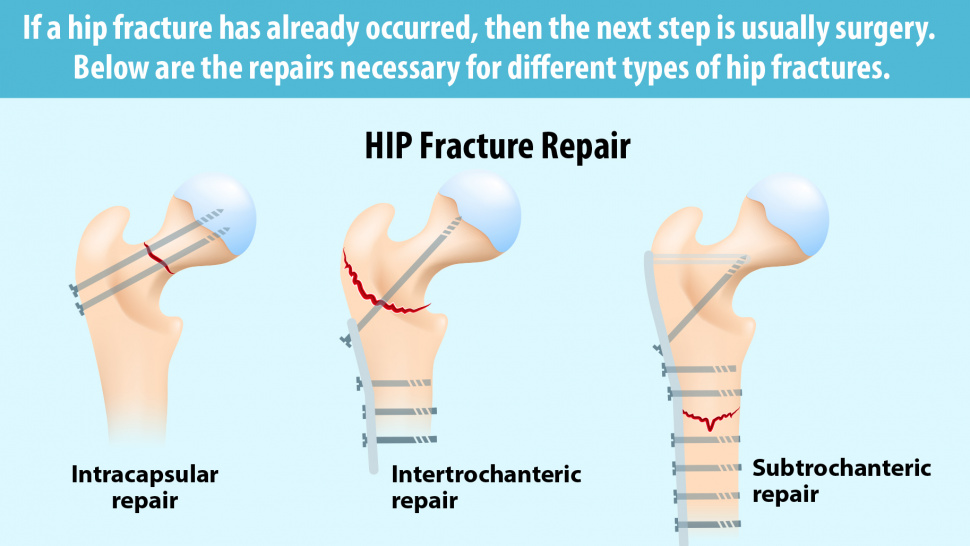 Hip Fracture? Here Are 3 Surgical Ways To An Effective Treatment